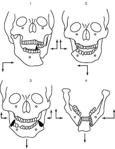 Варианты смещения отломков нижней челюсти