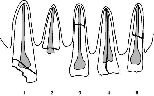 Схема отдельных видов перелома