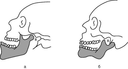 Вывих нижней челюсти, клиника, лечение - Хирургическая ...