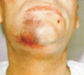 Гематома в области подбородка у больного с переломом нижней челюсти