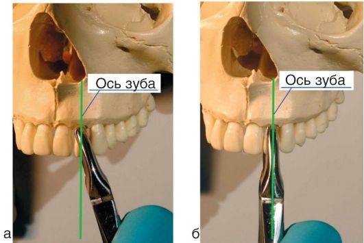 Наложение щёчек щипцов на зуб