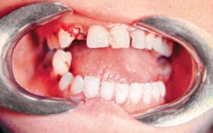 Нарушение прикуса при переломе нижней челюсти в области моляров
