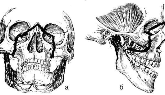 Схема перелома верхней челюсти